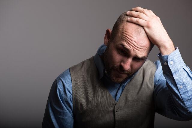 AGA(男性型脱毛症)になるメカニズムと原因