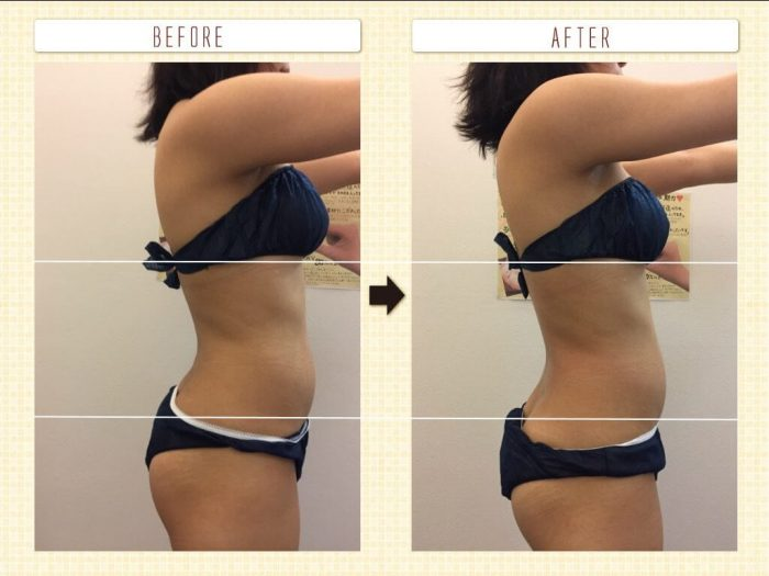 ハイパーナイフ体験! 3回の施術で体重-4キロ・体脂肪率-1%減りました!