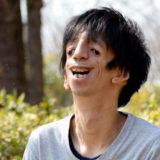 【石田祐貴】トリーチャーコリンズ症候群:過酷な人生を乗り切る力